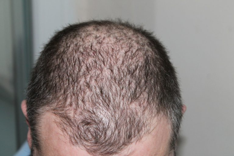 Alopecia Areata: A Hair Loss Disease You Might Be Suffering From